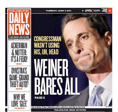 weiner-bares-all