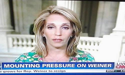 weiner-mounting-pressure